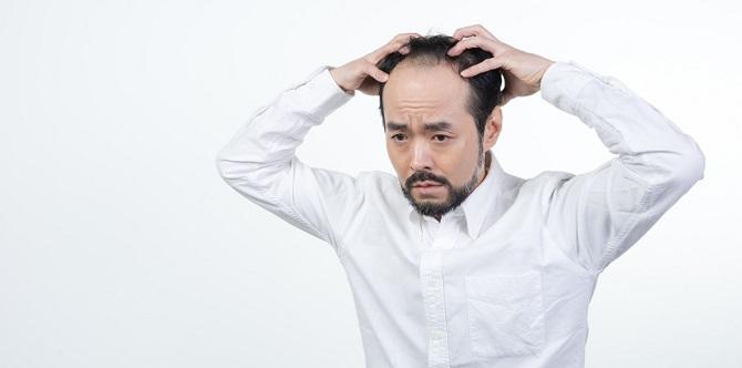 育毛を行う男性