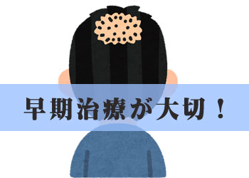 薄毛や抜け毛の治療