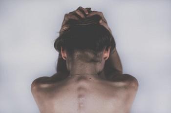 粃糠(ひこう)性脱毛症